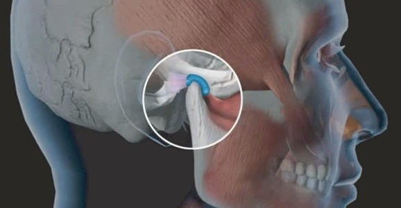 Clinical Case - TMJ Pain